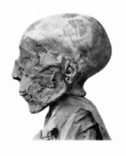 Seti II mummy head.png